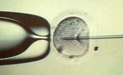 ubeskyttet samleje gravid chat uden oprettelse